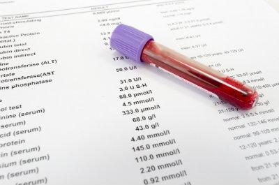 lab-results