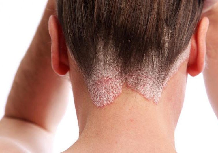 dermatitisseborreica